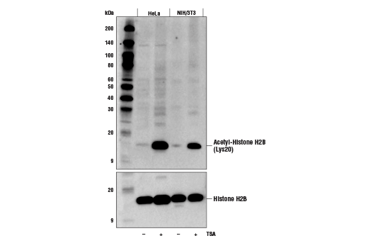 Western blot analysis of extracts from HeLa and NIH/3T3 cells, untreated (-) or treated with TSA #9950 (1 μM, 18 hr; +), using Acetyl-Histone H2B (Lys20) (D7O9W) Rabbit mAb (upper) and Histone H2B (D2H6) Rabbit mAb #12364 (lower).