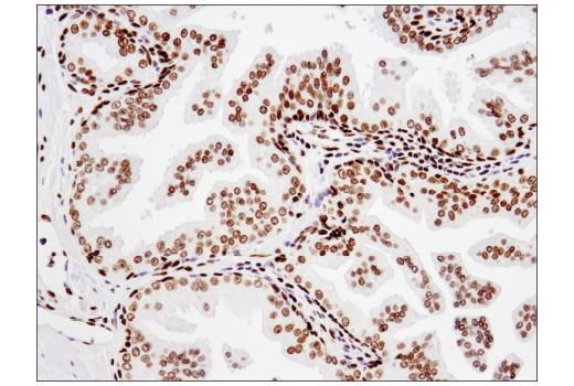 Immunohistochemical analysis of paraffin-embedded human prostate carcinoma using Acetyl-Histone H2B (Lys20) (D7O9W) Rabbit mAb.