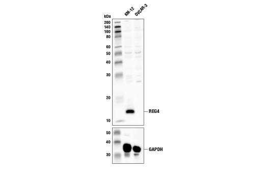 Polyclonal Antibody - REG4 Antibody - Western Blotting, UniProt ID Q9BYZ8, Entrez ID 83998 #43411 - Primary Antibodies