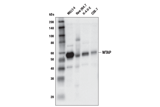Image 4: N6-mA Methyltransferase Antibody Sampler Kit