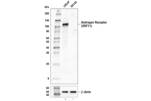 Monoclonal Antibody Western Blotting Androgen Receptor Activity