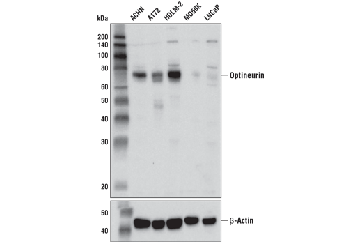 Western blot analysis of extracts from various cell lines using Optineurin (D2L8S) Rabbit mAb (upper) or β-Actin (D6A8) Rabbit mAb #8457 (lower).