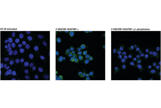 Image 4: Human Reactive Cell Death and Autophagy Antibody Sampler Kit