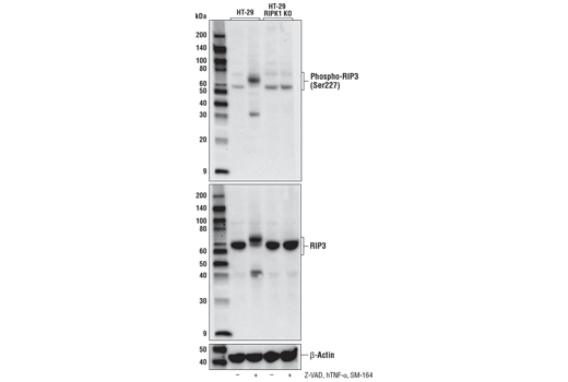 Western blot analysis of HT-29 cells or HT-29 RIPK1 KO cells, untreated (-) or treated with a combination of the following treatments as indicated: Z-VAD (20 μM, added 30 min prior to other compounds; +), Human Tumor Necrosis Factor-α #8902 (hTNF-α, 20 ng/ml, 7 hr; +), and SM-164 (100 nM, 7 hr; +), using Phospho-RIP3 (Ser227) (D6W2T) Rabbit mAb (upper), RIP3 (E1Z1D) Rabbit mAb #13526 (middle) or β-Actin (D6A8) Rabbit mAb #8457 (lower). HT-29 RIPK1 KO cells were kindly provided by Dr. Junying Yuan, Harvard Medical School, Boston, MA.