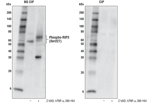 Western blot analysis of HT-29 cells, untreated (-) or treated with a combination of the following treatments as indicated: Z-VAD (20 μM, added 30 min prior to other compounds; +), Human Tumor Necrosis Factor-α #8902 (hTNF-α, 20 ng/ml, 7 hr; +), and SM-164 (100 nM, 7 hr; +), using Phospho-RIP3 (Ser227) (D6W2T) Rabbit mAb. To confirm phospho-specificity, membranes were either untreated (left) or treated with Calf Intestinal Phosphatase (CIP; right).
