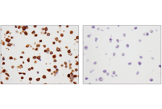 Immunohistochemical analysis of paraffin-embedded COLO 320 cell pellet (left, positive) or COLO 205 cell pellet (right, negative) using SMAD4 (D3R4N) XP<sup>®</sup> Rabbit mAb.