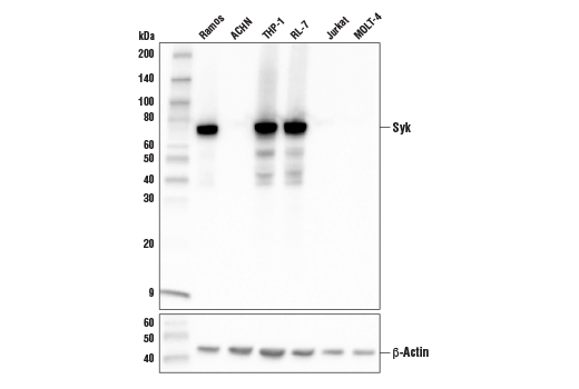 Western blot analysis of extracts from various cell lines using Syk (4D10) Mouse mAb (upper) or β-Actin (D6A8) Rabbit mAb #8457 (lower).