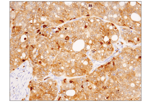 Immunohistochemical analysis of paraffin-embedded human serous papillary carcinoma of the ovary using Syk (4D10) Mouse mAb.