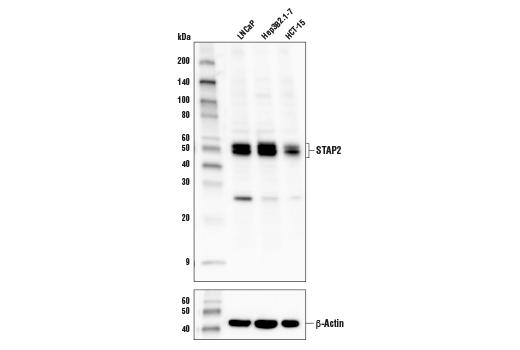 Polyclonal Antibody - STAP2 Antibody - Western Blotting, UniProt ID Q9UGK3, Entrez ID 55620 #81007 - #81007