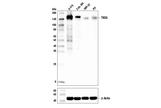 Western blot analysis of extracts from various cell lines using TKS5 Antibody (upper) and β-Actin (D6A8) Rabbit mAb #8457 (lower).