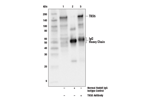 Immunoprecipitation of TKS5 protein from A-375 cell extracts. Lane 1 is 10% input, lane 2 is Normal Rabbit IgG #2729, and lane 3 is TKS5 Antibody. Western blot analysis was performed using TKS5 Antibody. Anti-rabbit IgG, HRP-linked Antibody #7074 was used as the secondary antibody.