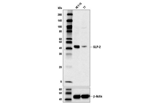 Western blot analysis of extracts from HCT-15 and TT cells using SLP-2 (D5N4E) Rabbit mAb (upper) and β-Actin (D6A8) Rabbit mAb#8457 (lower).