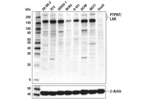 Western blot analysis of extracts from various cell lines using PTPRF/LAR Antibody (upper) or β-Actin (D6A8) Rabbit mAb #8457 (lower).