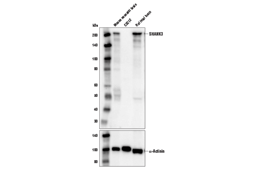 Western blot analysis of extracts from mouse neonatal brain, C2C12 cells and rat fetal brain using SHANK3 (D5K6R) Rabbit mAb (upper) and α-Actinin (D6F6) XP<sup>®</sup> Rabbit mAb #6487 (lower).