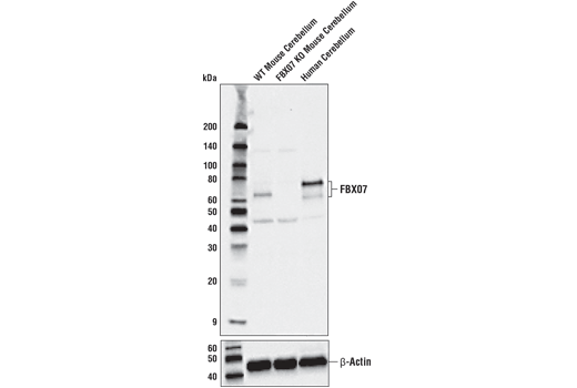 Mouse Negative Regulation of Lymphocyte Differentiation