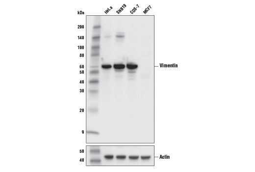 Western blot analysis of extracts from various cell lines using Vimentin (V9) Mouse mAb (upper), or β-Actin (D6A8) Rabbit mAb #8457 (lower).
