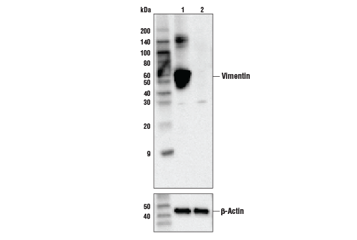 Western blot analysis of HeLa cell extracts, untreated (-) or Vimentin knock-out (+), using Vimentin (V9) Mouse mAb, #49636 (upper) or β-actin (13E5) Rabbit mAb #4970 (lower).