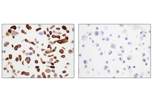 Immunohistochemical analysis of paraffin-embedded T-47D cell pellet (left, positive) or MDA-MB-231 cell pellet (right, negative) using Tau (D1M9X) XP<sup>®</sup> Rabbit mAb.