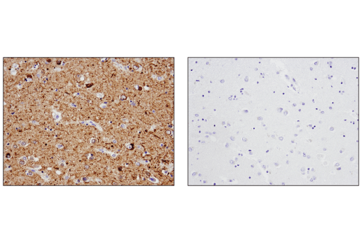 Immunohistochemical analysis of paraffin-embedded human Alzheimer's brain using Tau (D1M9X) XP<sup>®</sup> Rabbit mAb in the presence of control peptide (left) or antigen-specific peptide (right).