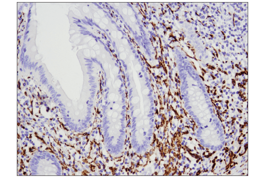 Image 39: Pathological Hallmarks of Alzheimer's Disease Antibody Sampler Kit