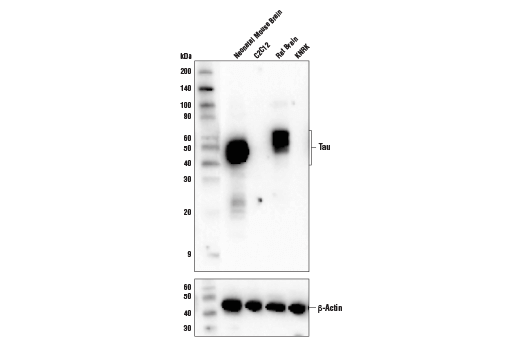 Western blot analysis of extracts from various cell lines and tissues using Tau (D1M9X) XP<sup>®</sup> Rabbit mAb (upper) and β-Actin (D6A8) Rabbit mAb #8457 (lower).