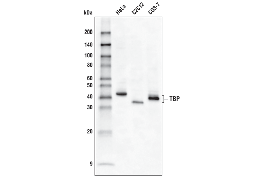 Monoclonal Antibody Western Blotting Regulation of Gene Expression