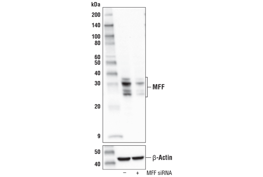 Western blot analysis of extracts from 293T cells, mock transfected (-) or transfected with siRNA targeting human MFF (+), using MFF (E5W4M) XP<sup>®</sup> Rabbit mAb (upper) and β-Actin (D6A8) Rabbit mAb #8457 (lower).