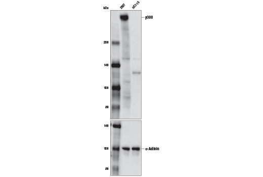 Western blot analysis of extracts from 293T and HCT-15 cells using p300 (D2X6N) Rabbit mAb (upper) and α-Actinin (D6F6) XP<sup>®</sup> Rabbit mAb #6487 (lower). As expected, HCT-15 cells are negative for p300 expression.