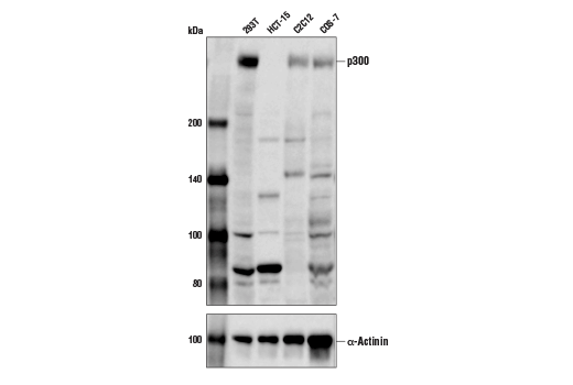 Western blot analysis of extracts from various cell lines using p300 (D1M7C) Rabbit mAb (upper) and α-Actinin (D6F6) XP<sup>®</sup> Rabbit mAb #6487 (lower). As expected, HCT 15 cells are negative for p300 expression.