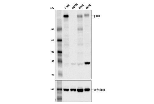 Western blot analysis of extracts from various cell lines using p300 (D8Z4E) Rabbit mAb (upper) and α-Actinin (D6F6) XP<sup>®</sup> Rabbit mAb #6487 (lower). As expected, HCT-15 cells are negative for p300 expression.