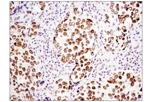 Immunohistochemical analysis of paraffin-embedded human squamous cell lung carcinoma using p300 (D8Z4E) Rabbit mAb.