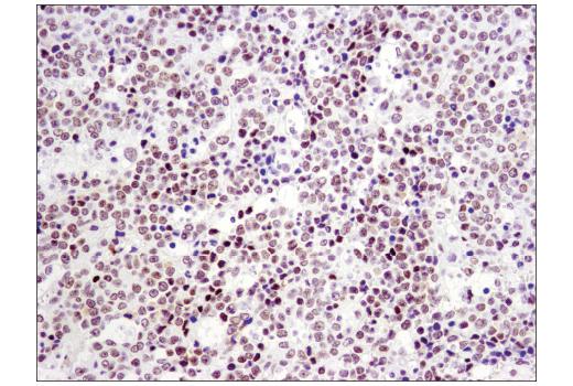 Immunohistochemical analysis of paraffin-embedded human non-Hodgkin's lymphoma using p300 (D8Z4E) Rabbit mAb.