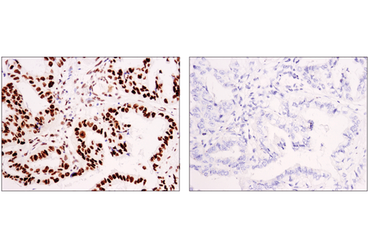 Immunohistochemical analysis of paraffin-embedded human non-small cell lung carcinoma using Asymmetric Dimethyl-SMARCC1/BAF155 (Arg1064) (D8I3U) Rabbit mAb in the presence of non-methyl peptide (left) or asymmetric dimethyl-Arg1064 peptide (right).