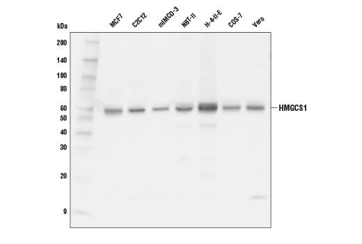 Western blot analysis of extracts from various cell lines using HMGCS1 (D1Q9D) Rabbit mAb.