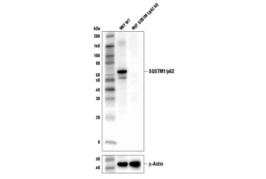 Western blot analysis of extracts from MEFs from wild-type or SQSTM1/p62 knockout mice using SQSTM1/p62 (D6M5X) Rabbit mAb (Rodent Specific) (upper) or β-Actin (D6A8) Rabbit mAb #8457 (lower). MEF SQSTM1/p62 KO cells were kindly provided by Dr. Junying Yuan, Harvard Medical School, Boston MA.
