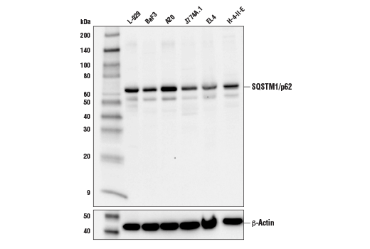 Western blot analysis of extracts from various cell lines using SQSTM1/p62 (D6M5X) Rabbit mAb (Rodent Specific).