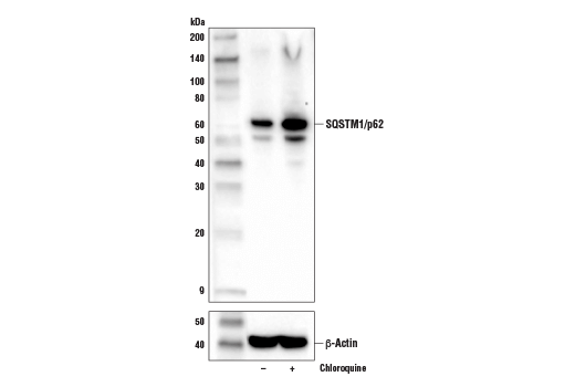 Western blot analysis of extracts from C2C12 cells, untreated (-) or treated with Chloroquine #14774 (50 μM, overnight) using SQSTM1/p62 (D6M5X) Rabbit mAb (Rodent Specific) (upper) or β-Actin (D6A8) Rabbit mAb #8457 (lower).