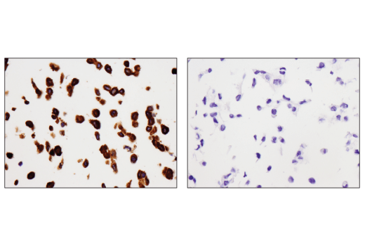 Image 19: Mouse Reactive Cell Death and Autophagy Antibody Sampler Kit