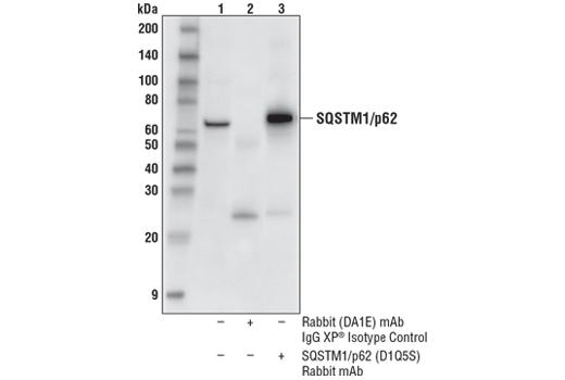 Monoclonal Antibody - SQSTM1/p62 (D1Q5S) Rabbit mAb - Immunoprecipitation, Western Blotting, UniProt ID Q64337, Entrez ID 18412 #39749 - Primary Antibodies