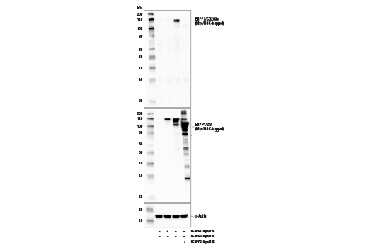 Western blot analysis of extracts from 293T cells, mock transfected (-) or transfected with constructs expressing Myc/DDK-tagged full-length human ENPP1 protein (hENPP1-Myc/DDK; +), Myc/DDK-tagged full-length human ENPP3 protein (hENPP3-Myc/DDK; +), and Myc/DDK-tagged full-length human ENPP2 protein (hENPP2-Myc/DDK; +), using ENPP3/CD203c Antibody (upper), DYKDDDK Tag Antibody #2368 (middle), and β-Actin (D6A8) Rabbit mAb #8457 (lower).