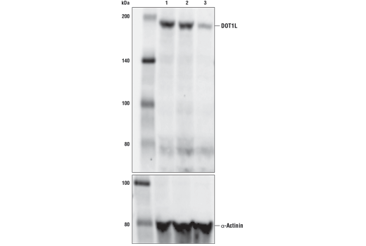 Western blot analysis of extracts from HCT116 cells, either untransfected (lane 1), mock transfected (lane 2), or transfected with DOT1L siRNA (lane 3) using DOT1L (D1W4Z) Rabbit mAb (upper) or α-Actinin (D6F6) XP<sup>®</sup> Rabbit mAb #6487 (lower).