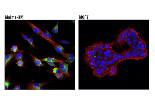 Confocal immunofluorescent analysis of Malme-3M (left) and MCF7 (right) cells using Cathepsin B (D1C7Y) XP® Rabbit mAb (Alexa Fluor® 488 Conjugate) (green) and β-Actin (8H10D10) Mouse mAb #3700 (red). Blue pseudocolor = DRAQ5<sup>®</sup> #4084 (fluorescent DNA dye).