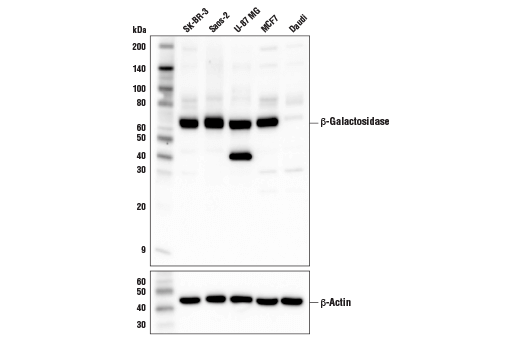 beta galactosidase and western blot Abcam rabbit anti goat igg h l beta galactosidase the primary antibodies used were goat anti-gfp (fitc)  for western blot analysis  for immunohistochemistry,.