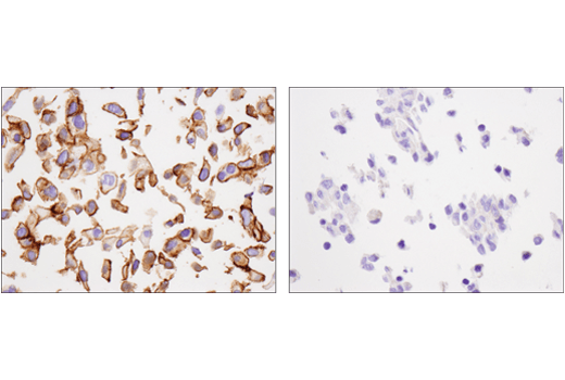 Immunohistochemical analysis of paraffin-embedded Detroit-562 cell pellet (left, positive) or ACHN cell pellet (right, negative) using Cadherin-6 (D3T3I) Rabbit mAb.
