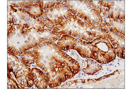 Monoclonal Antibody - Cadherin-6 (D3T3I) Rabbit mAb, UniProt ID P55285, Entrez ID 1004 #48111, Adhesion