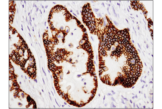 Immunohistochemical analysis of paraffin-embedded human serous ovarian carcinoma using Cadherin-6 (D3T3I) Rabbit mAb.
