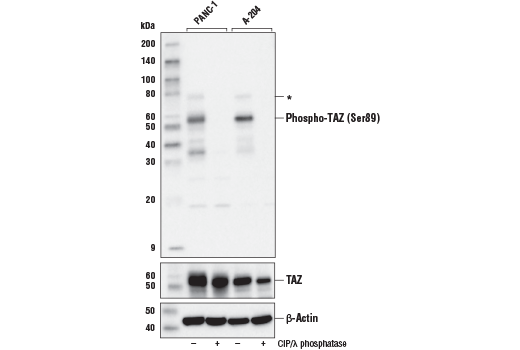 Western blot analysis of extracts from PANC-1 and A-204 cells, untreated (-) or treated with calf intestinal phosphatase (CIP) and λ phosphatase (+) using Phospho-TAZ (Ser89) (E1X9C) Rabbit mAb (upper), TAZ (D3I6D) Rabbit MAb #70148 (middle) and β-Actin (D6A8) Rabbit mAb #8457 (lower). Asterisk (*) indicates weak detection of phosphorylated YAP, due to sequence similarity in the regions surrounding TAZ (Ser89) and YAP (Ser127).