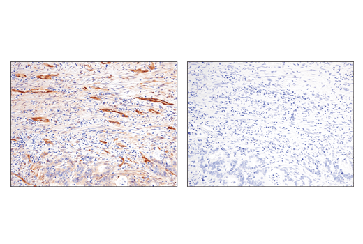 Immunohistochemical analysis of paraffin-embedded human colon adenocarcinoma, untreated (left) or lambda phosphatase treated (right), using Phospho-TAZ (Ser89) (E1X9C) Rabbit mAb.