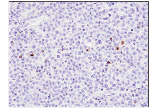 Image 47: Human T Cell Co-inhibitory and Co-stimulatory Receptor IHC Antibody Sampler Kit