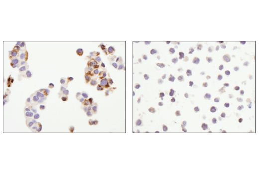 Immunohistochemical analysis of paraffin-embedded Hep G2 cell pellet (left, positive) or Raji cell pellet (right, negative) using Arginase-2 (D9J1N) XP<sup>®</sup> Rabbit mAb.